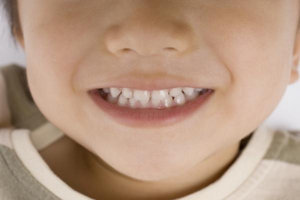 小児期の予防歯科