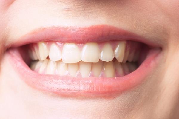 健康な歯ぐき